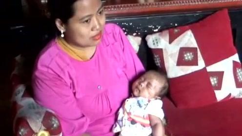 印尼婴儿在熟睡时遭老鼠啃咬 脸部伤痕累累