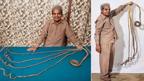 印度男子66年不剪指甲,单手指甲总长达9米,剪掉后手都废了!