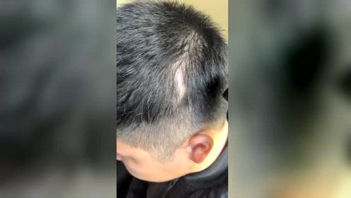 补发神器,刀疤处瞬间变得有头发了,就是这么方便