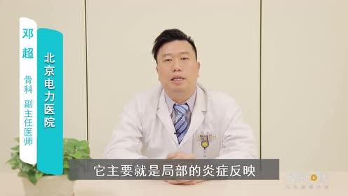 激光治疗腰肌劳损的原理是怎样的