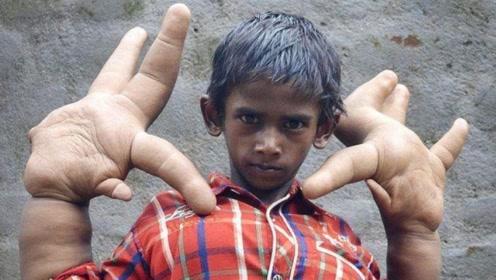 """印度男孩天生""""巨掌"""",一天比一天大,被称为魔鬼的儿子!"""