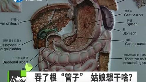"""女子吞下30厘米""""吸管""""?医生震惊:竟是催吐管!"""
