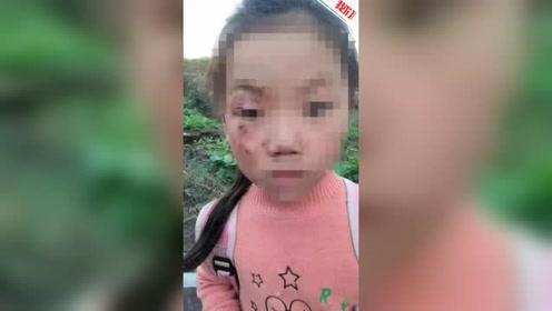 四川宜宾6岁女孩被打成满脸伤 妇联:爷爷女友所为