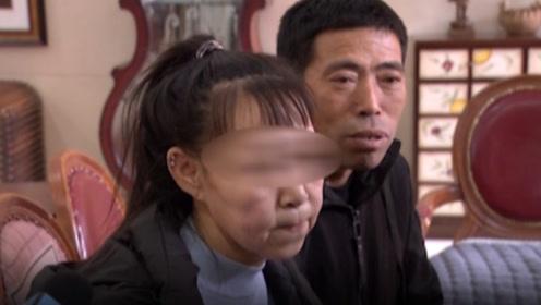 15岁少女长了60岁的脸,皮肤松弛布满褶皱,母亲:我闺女心里很苦
