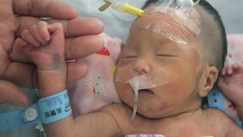5个月婴儿多天不排便,赶紧送往医院检查,医生:早干嘛去了!