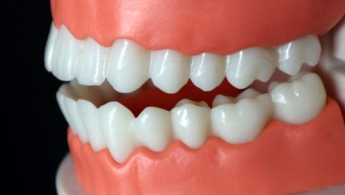牙齿很脏不好看?教你一招,这样刷一刷,脏牙齿也能轻松变亮白