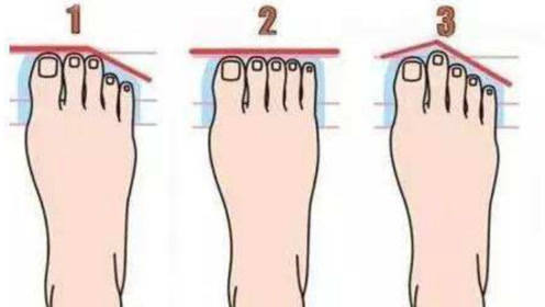 二脚趾长福气旺,脚趾平齐最劳累,你是哪一种?