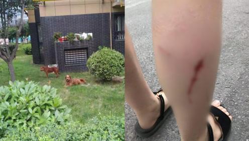 可怕!妹妹被小区3条流浪狗围攻咬伤,前几天姐姐也被咬