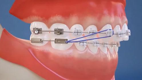 """牙套为何能""""矫正牙齿""""?3D动画演示全过程,看完顿时牙齿颤粟"""