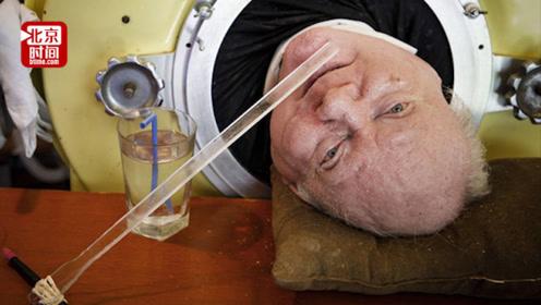 """美国男子躺在""""铁桶""""67年只能露出一颗头 却靠自学成为律师"""