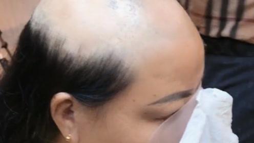 大妈经历了一场意外头发都掉光了,定制一个假发戴上终于敢出门了