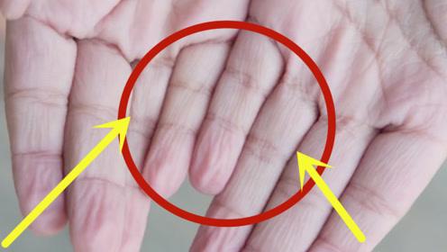 为什么有的人洗澡时,手指会出现皱纹,看完让人心头一紧!