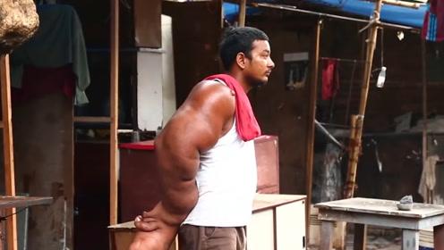 """印度男子被当作""""恶魔之子"""",因长着麒麟臂,被村民无情赶出家乡"""