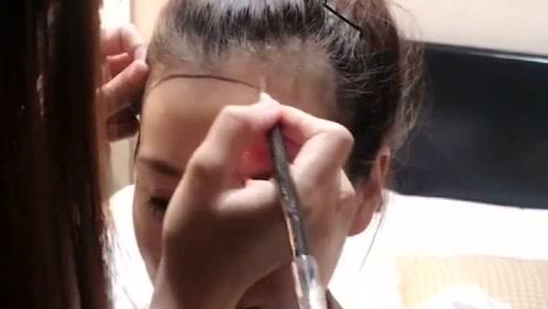 妹子觉得自己发际线太高,来植发种出好看的发际线