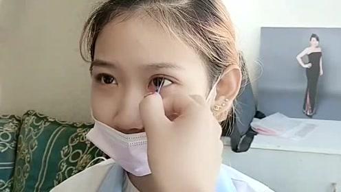 单眼皮的小妹妹来设计双眼皮,眼睛大了变得超好看啊