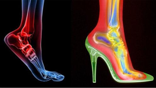 经常穿高跟鞋的女性,脚部会发生哪些变化?看完心情复杂!