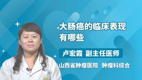 大肠癌的临床表现,你知道有哪些吗?