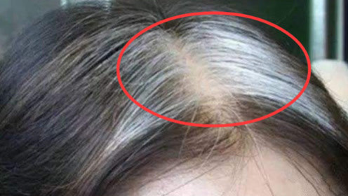 医生告诫:不论男女,一旦这里开始长白头发,说明癌症离你不远了