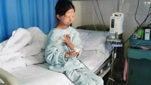 24岁女大学生为省钱给弟治病,吃5年辣椒拌饭,体重只有42斤