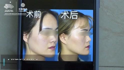 """打完瘦脸针后觉得脸瘦 """"过头""""!院方回应患者提供术前照片有美颜"""