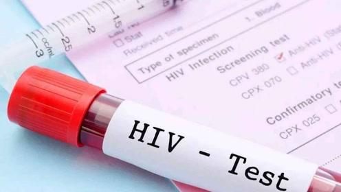 艾滋病感染率在中国大学生中飙升,每年30-50%的增长率,需要引起注意