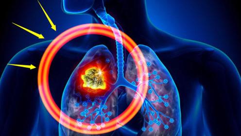 """睡觉时出现""""3种迹象"""",当心是肺癌的早期""""信号"""",趁早就医检查"""