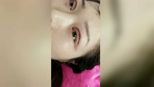 刚做的双眼皮手术,果然眼睛真的大了一倍,一点都不疼