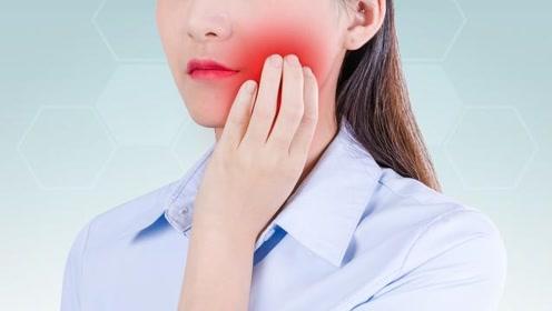 有一种痛,叫口腔溃疡,补充维C不顶用,这些办法才靠谱
