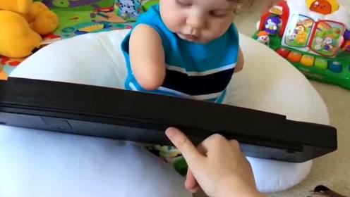 一岁小宝宝虽然没了双臂,但一直超越常人的坚强!