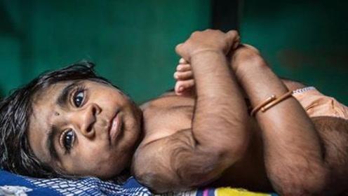 """印度男婴出生自带火种,3月内自燃4次,人称""""火神转世""""!"""