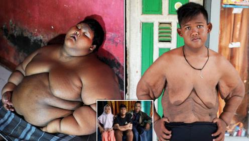 10岁男孩体重达300斤!为减肥切掉半斤胃,如今变身高颜值帅哥!