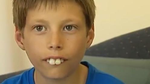 小伙天生兔牙找不到女友,决心磨掉后堪比整容,丑男秒变大帅哥!