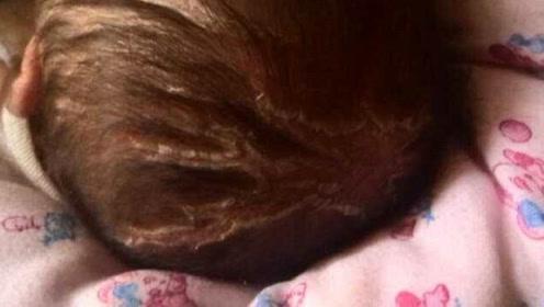 女宝头发一大把的掉,妈妈不当回事最后竟变斑秃,医生看后撒腿就跑