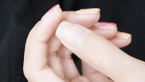 比贴甲片更简单!适合新手,快速修复指甲断裂
