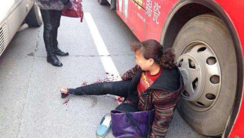 公交站等车,却被公交车撞飞,网友:太倒霉了吧!