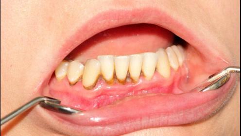 牙膏是骗局吗,为何天天刷牙牙齿还会发黄,真的能美白?