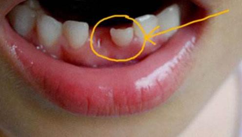如果宝宝处于换牙期,这些食物要多吃,能避免牙齿长歪