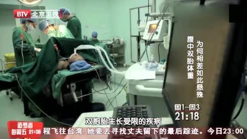 高龄产妇怀上双胞胎,可两个胎儿竟公用胎盘互相伤害,太可怕了