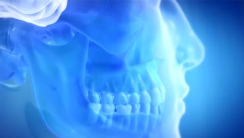 学生嫌整牙太贵,想方设法自己造了假牙,才400元