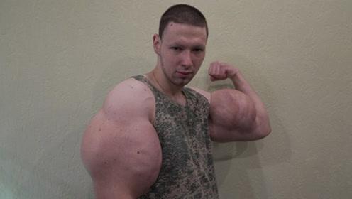 健身先健脑,男子为大肌肉注射西斯龙,如今众筹做手术