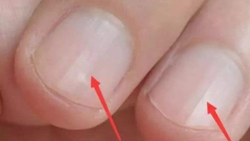指甲盖上会有竖纹,是身体哪里有异常?一定要留意了!