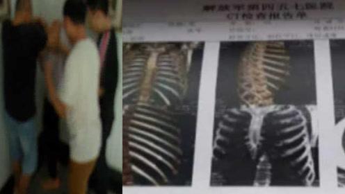 """心痛!医院护工被打断9根肋骨:被一家政公司收""""保护费"""""""