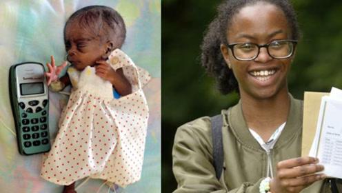早产宝宝出生时仅0.68斤 曾被告知无法存活如今已经16岁