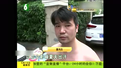 男子去养生会所拔火罐 结果手臂和背部严重烧伤!