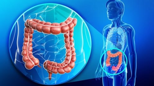 大肠癌发病率仅次于肺癌,如何避免大肠癌,四大秘诀了解一下