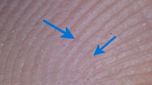 手掌的汗是怎么冒出来的?显微镜放大1000倍,太震撼了!