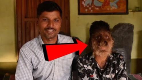 """印度神秘男孩体毛过盛,被人称作是""""狼孩"""",父母面目令人意外!"""