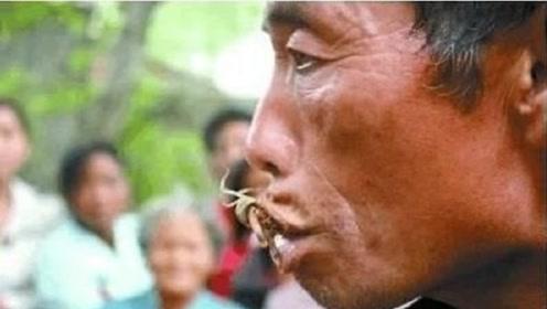 男子10年吃了一万多只蝎子,只为治疗隐疾,医生检查后大呼:世界之谜!