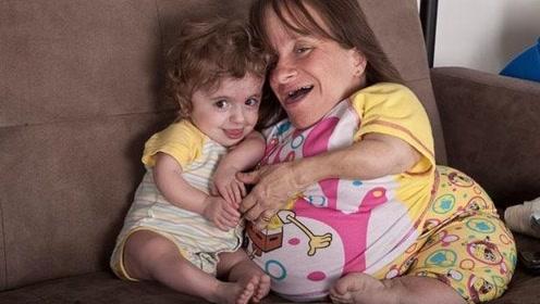 世界上最矮小的母亲,3年来连生3个孩子,结局令人心酸!