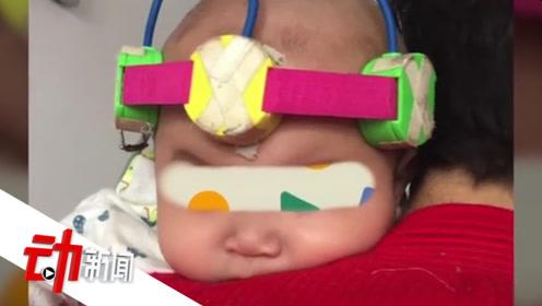 """""""封针""""治脑瘫的郑大三附院:曾致2岁患儿病情加重 赔5万元和解"""